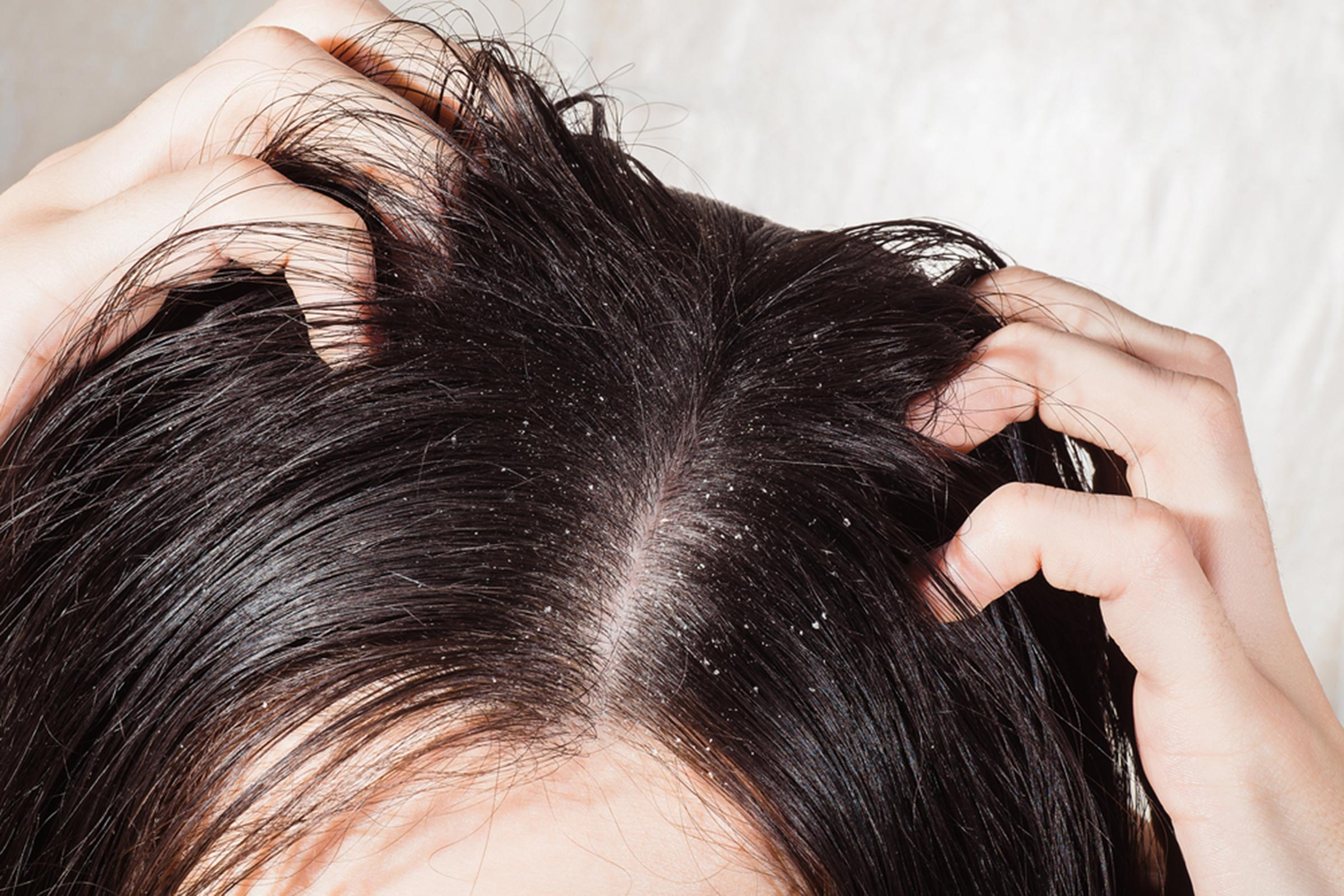 These Are The Best Ways To Treat Greasy Hair